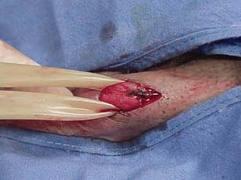Операции варикоцеле