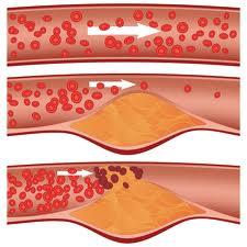 Последствия высокого уровня холестерина