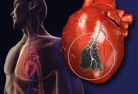 Сердечный приступ. Причины и признаки сердечного приступа